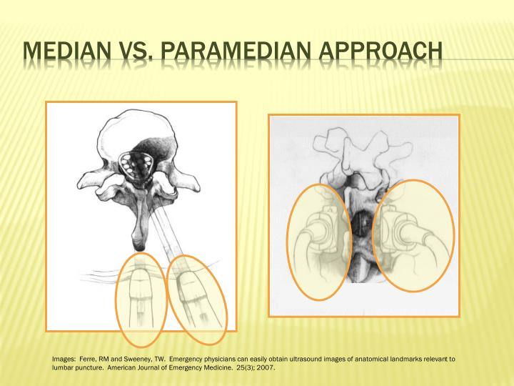 Ppt Ultrasound Guided Lumbar Puncture Powerpoint Presentation Id