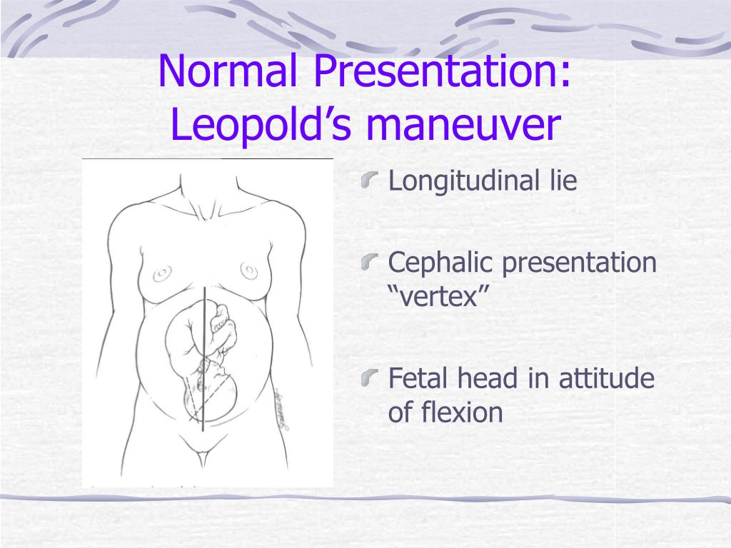 Normal Presentation:  Leopold's maneuver