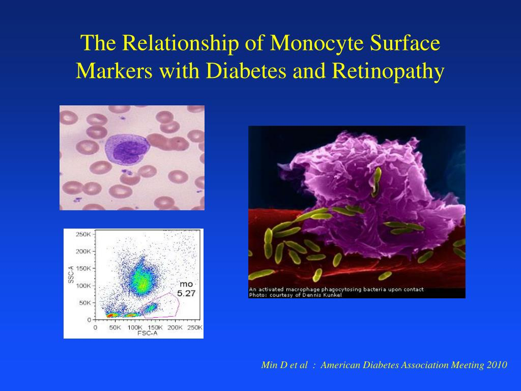 The Relationship of Monocyte Surface Markers with Diabetes and Retinopathy