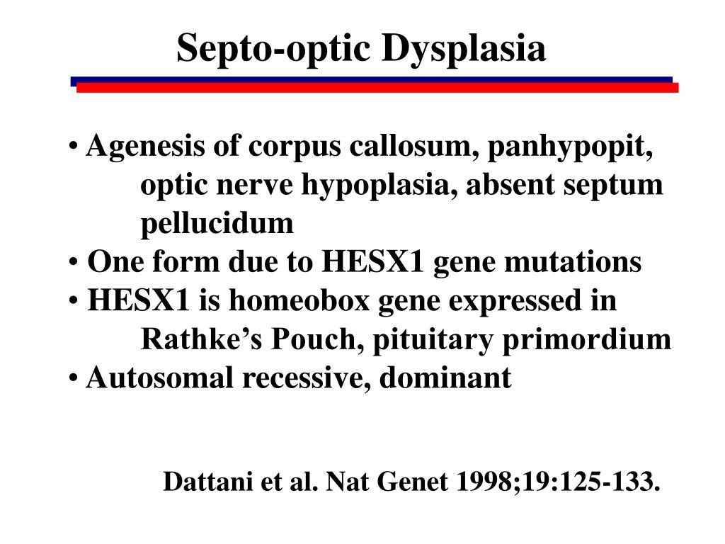Septo-optic Dysplasia