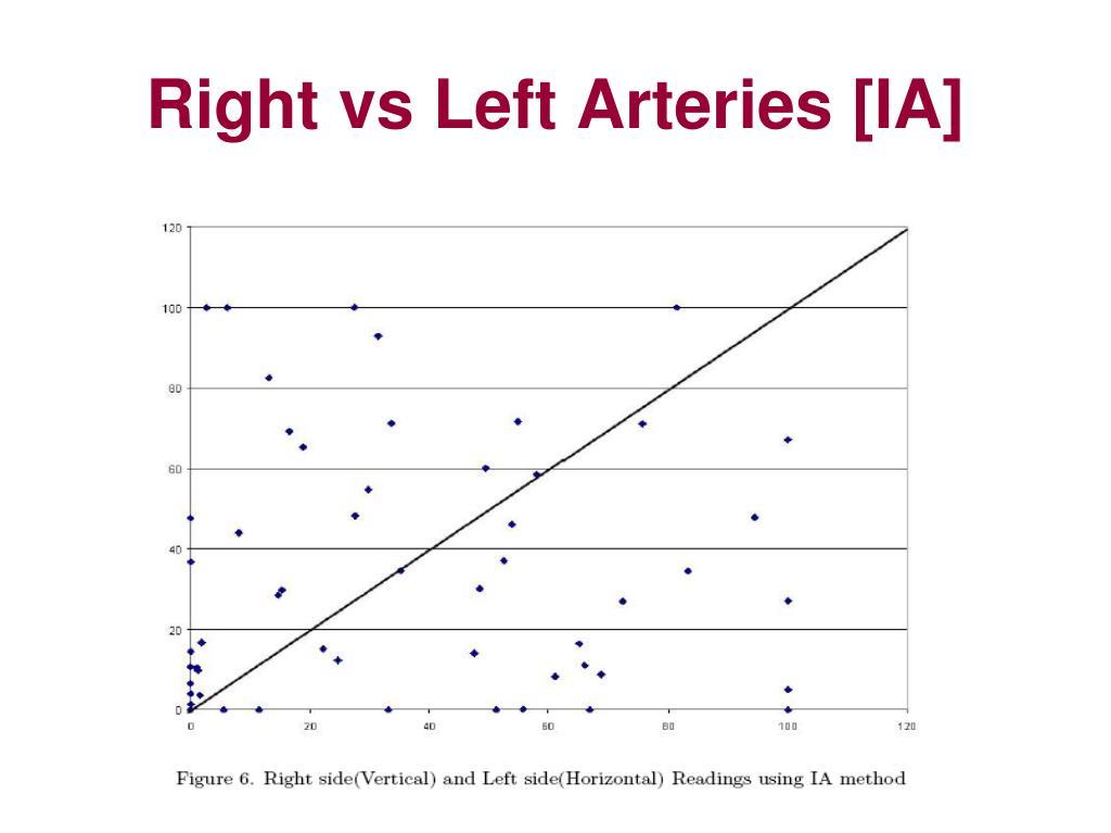Right vs Left Arteries [IA]