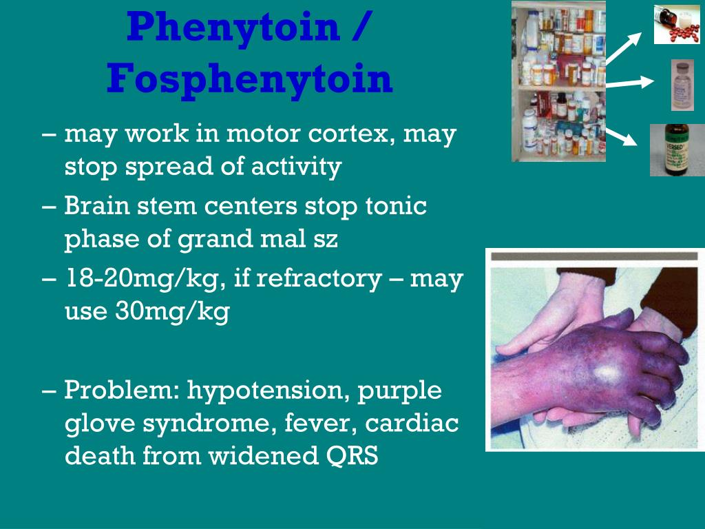 Phenytoin /