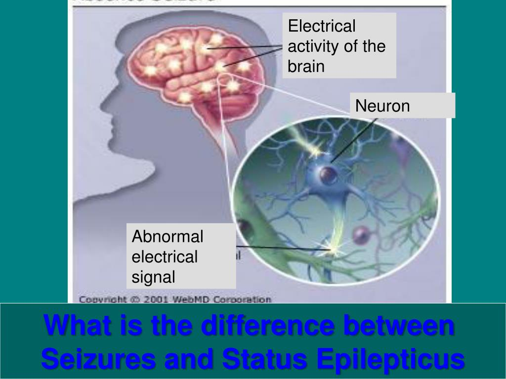 Electrical activity of the brain