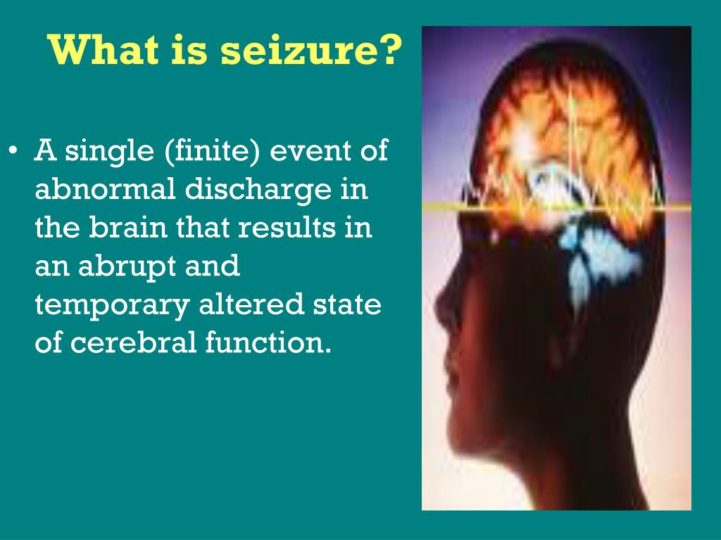 What is seizure?