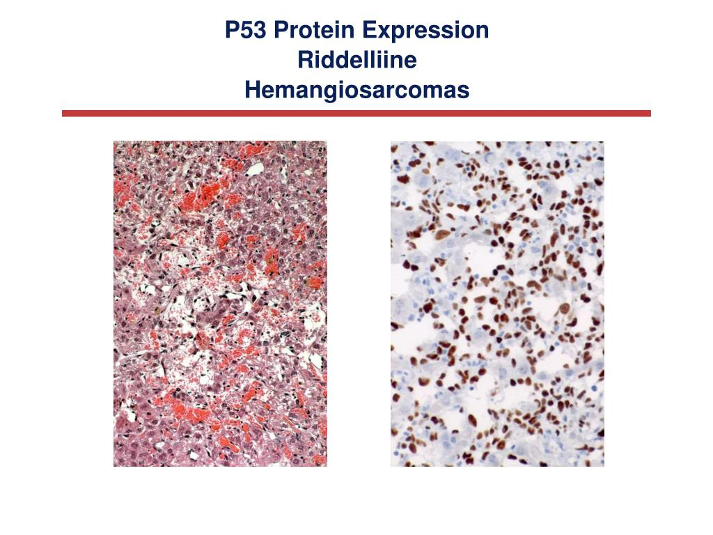 P53 Protein Expression