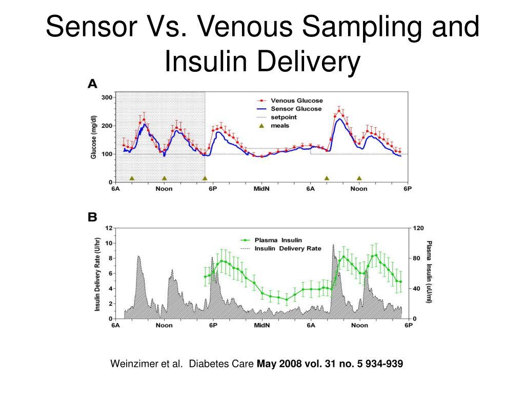 Sensor Vs. Venous Sampling and Insulin Delivery