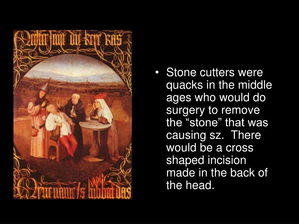 "Stone cutters were quacks in the middle ages who would do surgery to remove the ""stone"" that was causing sz.  There would be a cross shaped incision made in the back of the head."