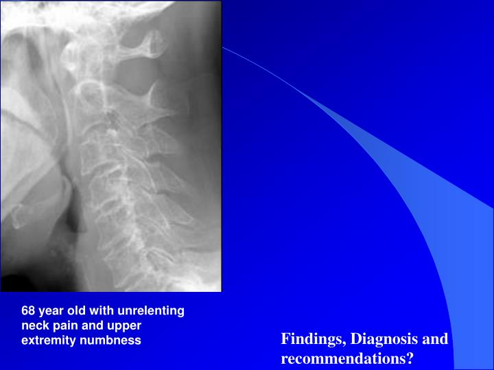 68 year old with unrelenting neck pain and upper extremity numbness