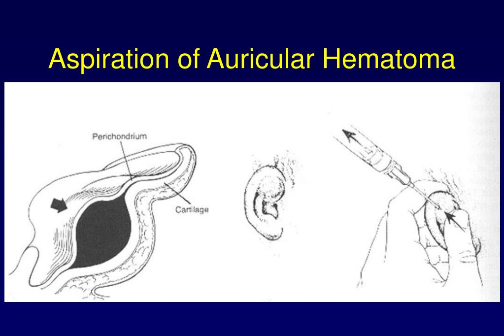 Aspiration of Auricular Hematoma
