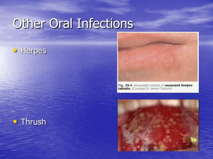 Other Oral Infections