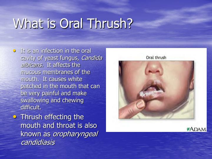 What is Oral Thrush?