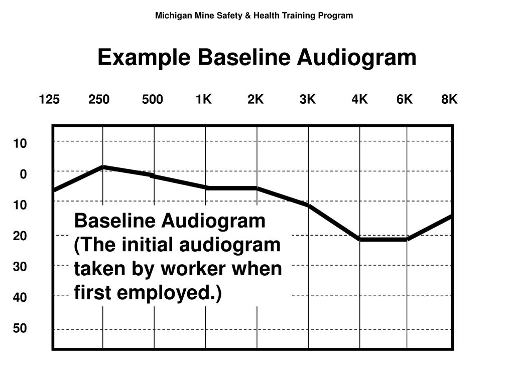 Example Baseline Audiogram