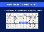 noncapture is exhibited by
