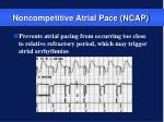 noncompetitive atrial pace ncap