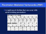 pacemaker mediated tachycardia pmt