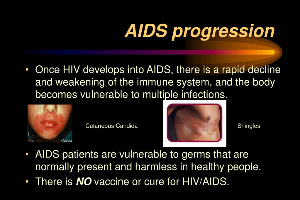 AIDS progression