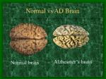 normal vs ad brain