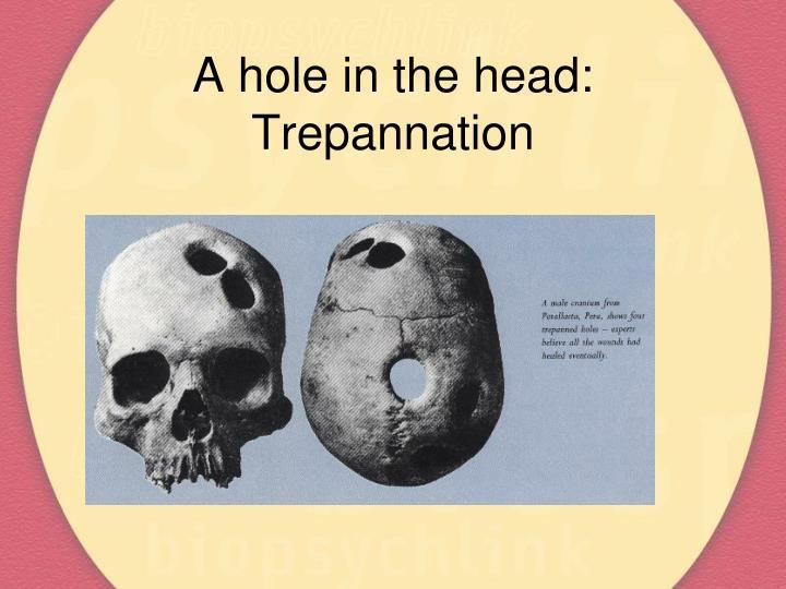 A hole in the head trepannation