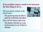 if an accident causes a tooth to be loosened the first thing to do is