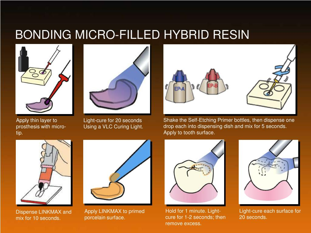 BONDING MICRO-FILLED HYBRID RESIN
