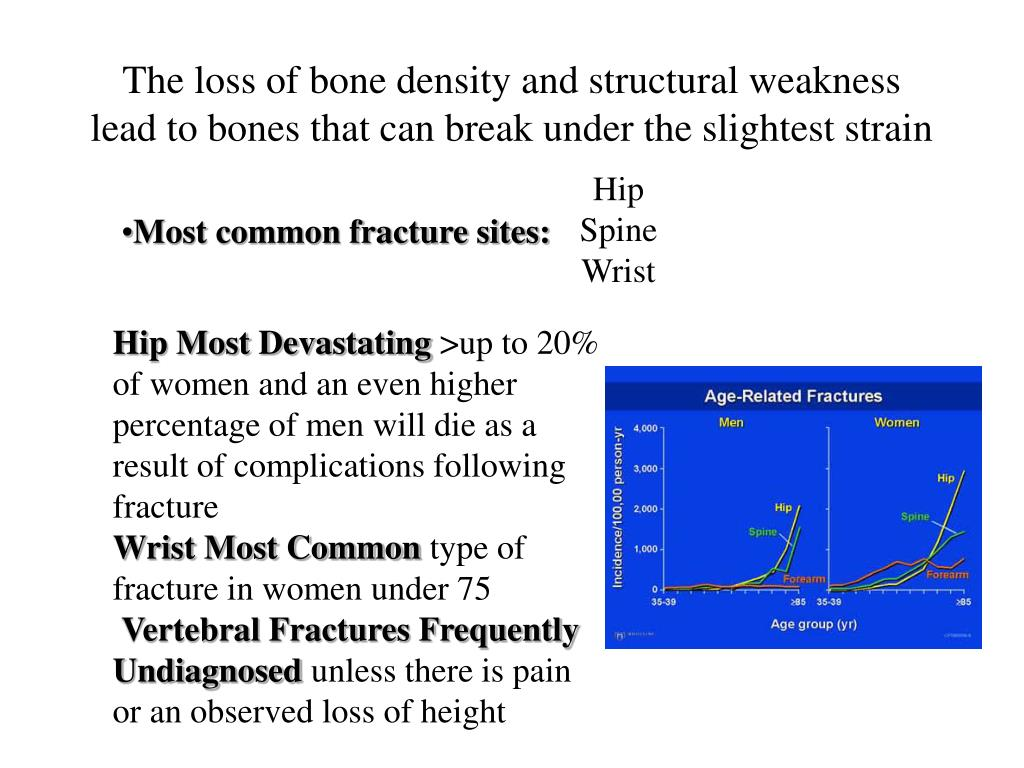 The loss of bone density and structural weakness lead to bones that can break under the slightest strain