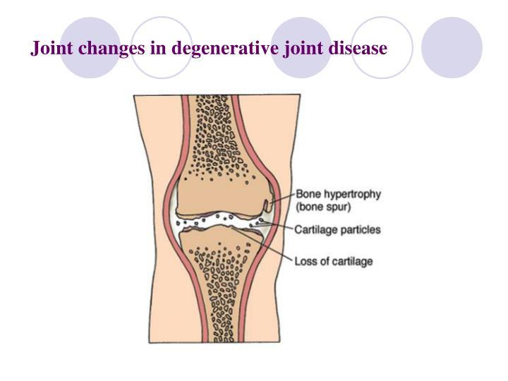 Joint changes in degenerative joint disease