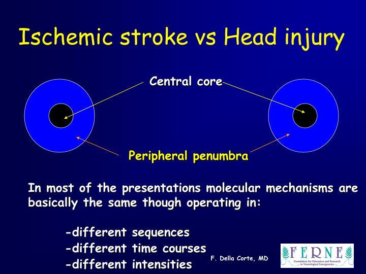 Ischemic stroke vs head injury