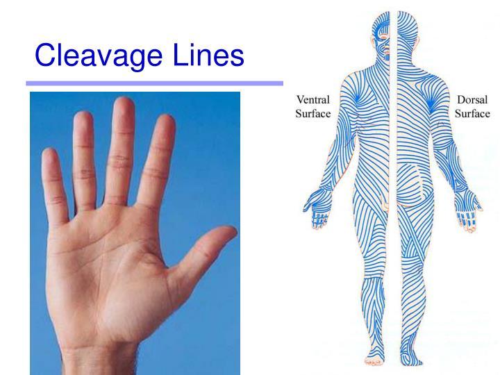 Cleavage Lines