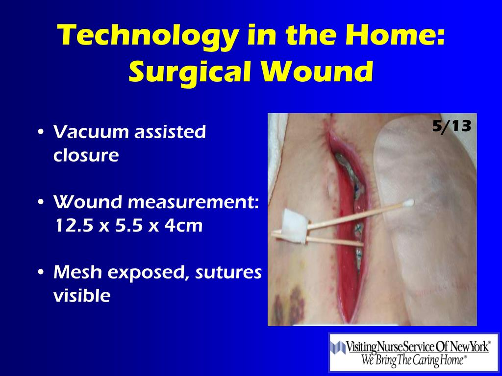 Vacuum assisted closure