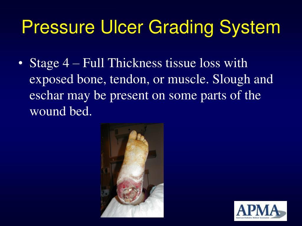 Pressure Ulcer Grading System