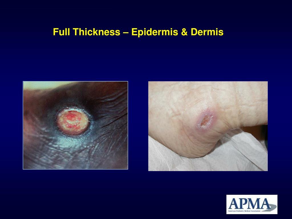 Full Thickness – Epidermis & Dermis