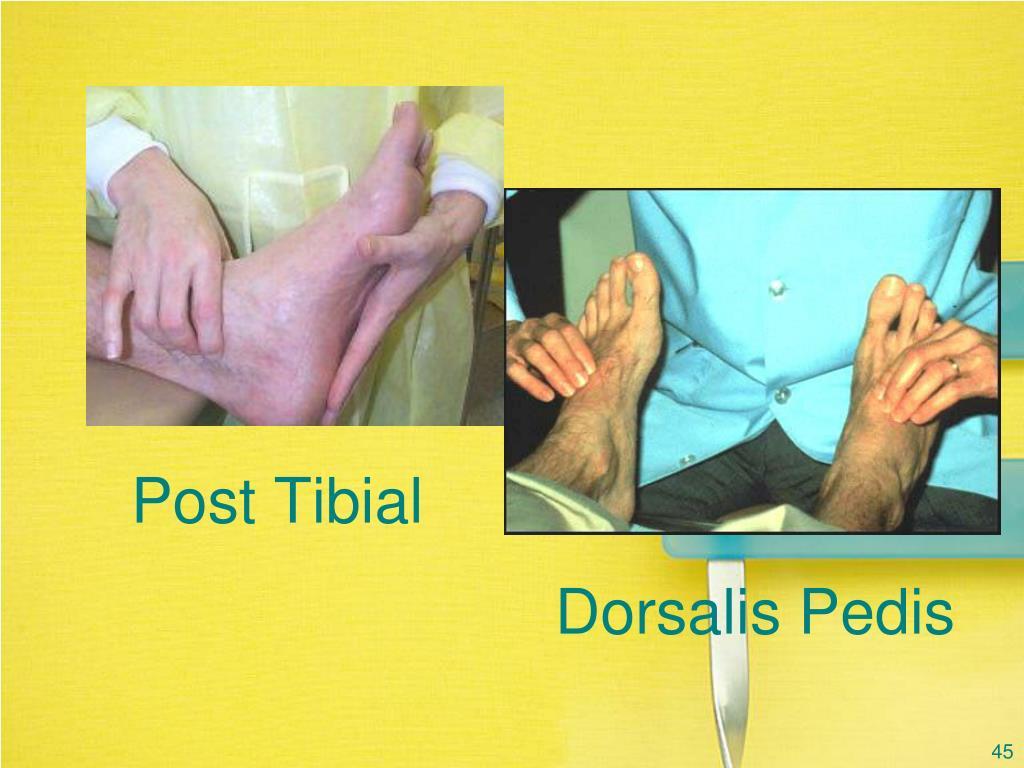 Post Tibial
