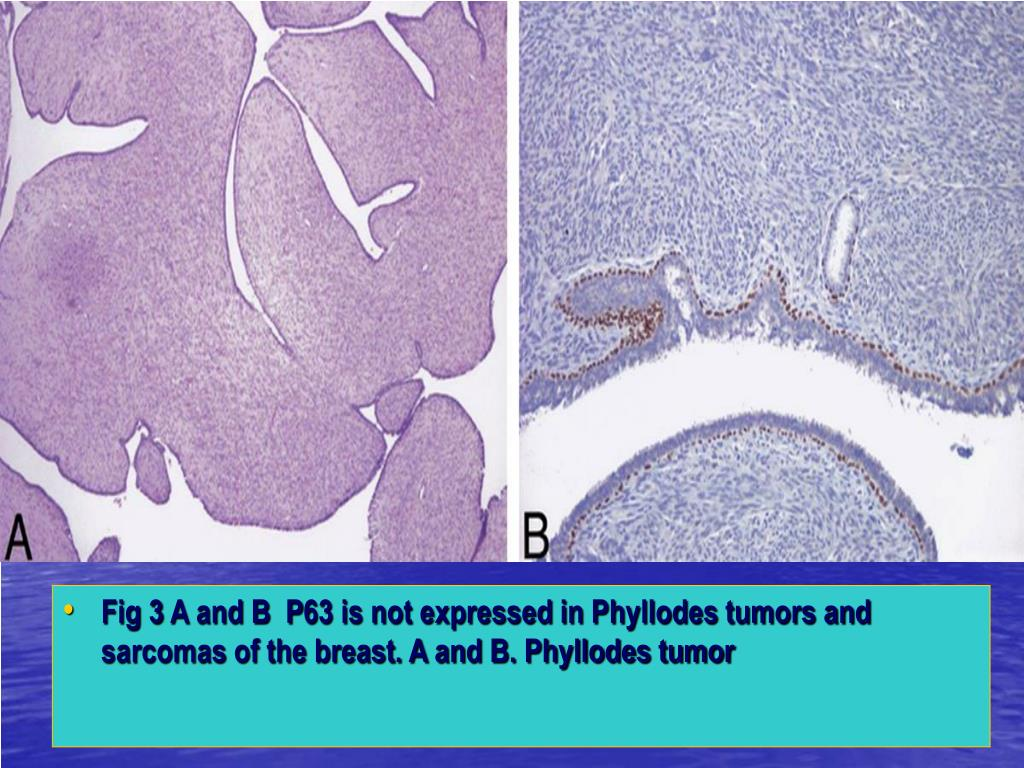 Fig 3 A and B  P63 is not expressed in Phyllodes tumors and sarcomas of the breast. A and B. Phyllodes tumor
