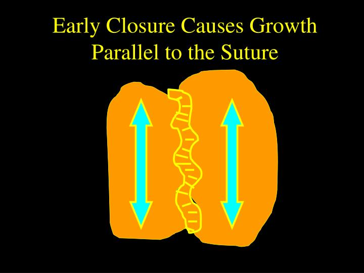 Early Closure Causes Growth Parallel to the Suture