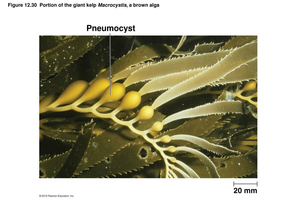 Pneumocyst