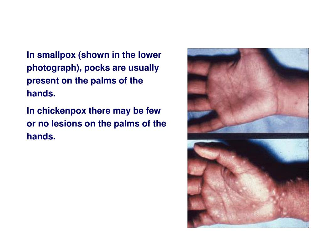 In smallpox (shown in the lower photograph), pocks are usually present on the palms of the hands.