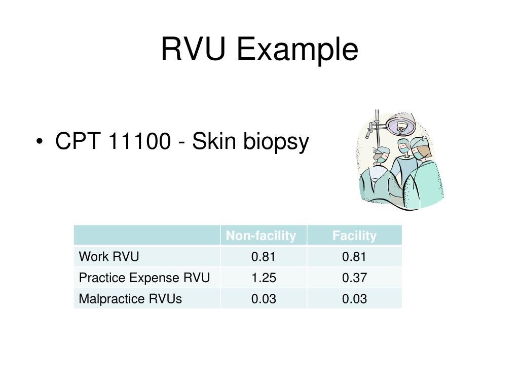 RVU Example
