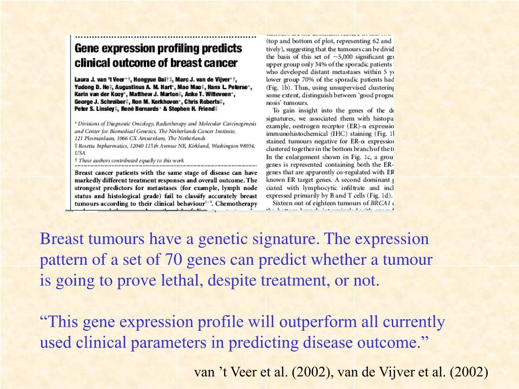 Breast tumours have a genetic signature. The expression