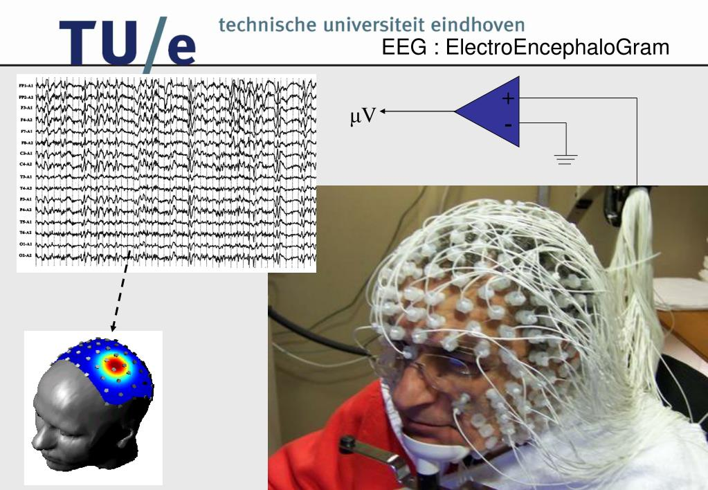 EEG : ElectroEncephaloGram
