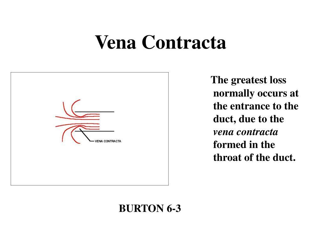 Vena Contracta