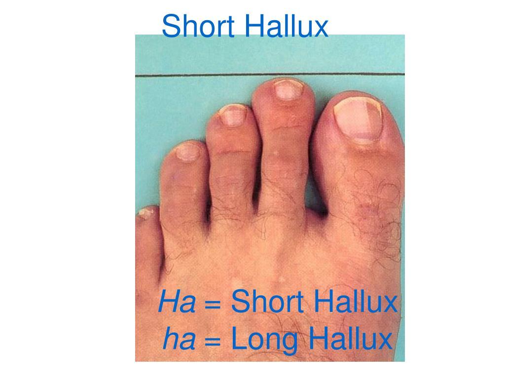 Short Hallux