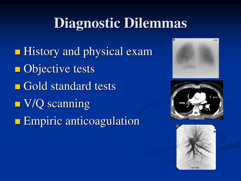 Diagnostic Dilemmas