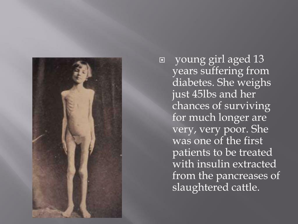 young girl aged 13 years suffering from diabetes. She weighs just 45lbs and her chances of surviving for much longer are very, very poor. She was one of the first patients to be treated with insulin extracted from the pancreases of slaughtered cattle.