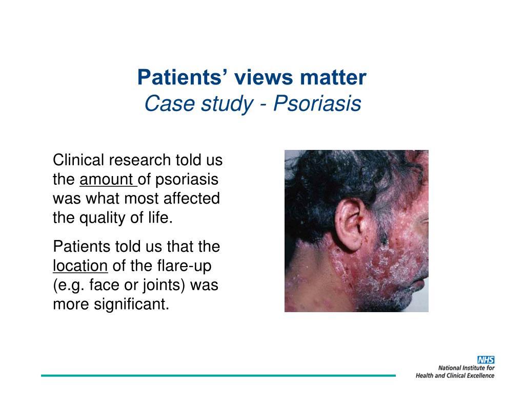 Patients' views matter