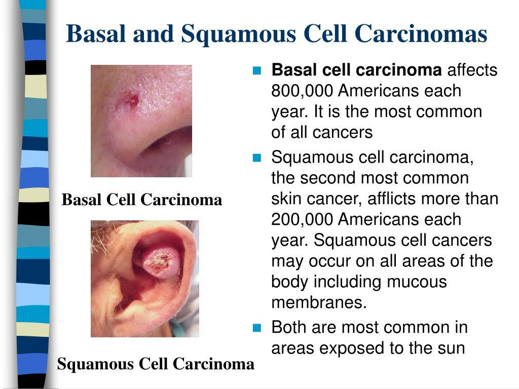 Basal and Squamous Cell Carcinomas