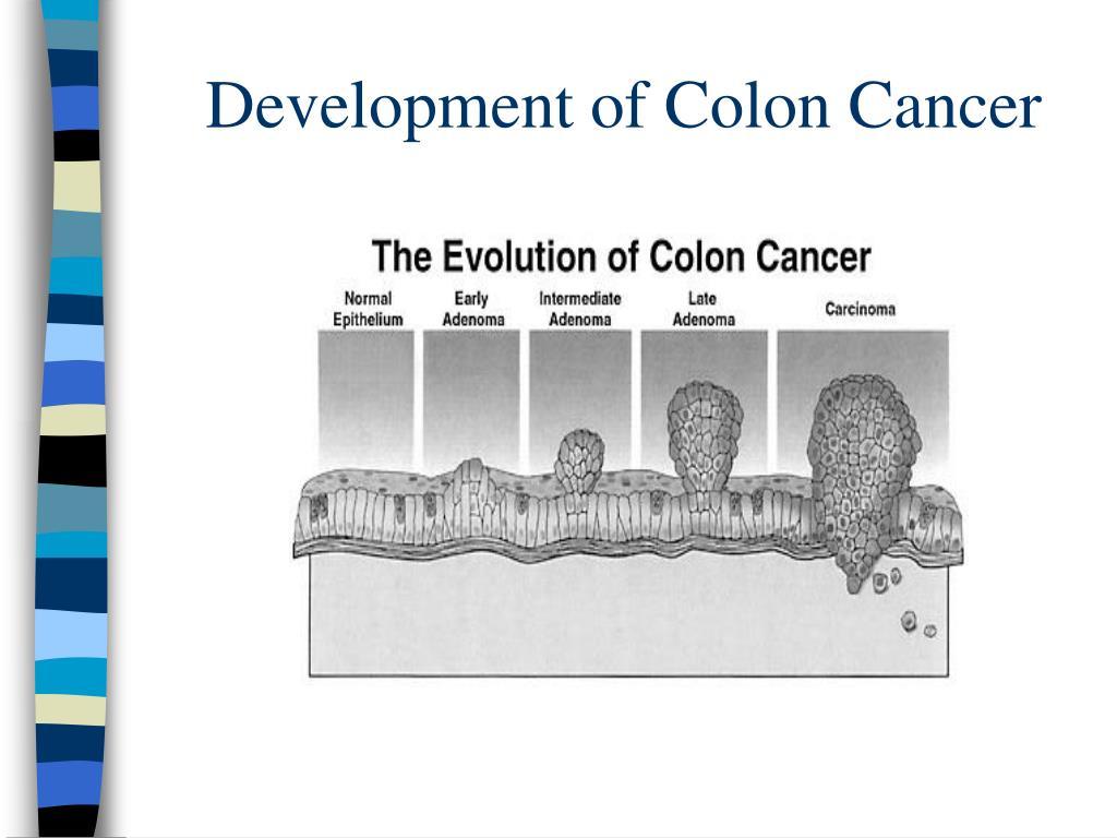 Development of Colon Cancer