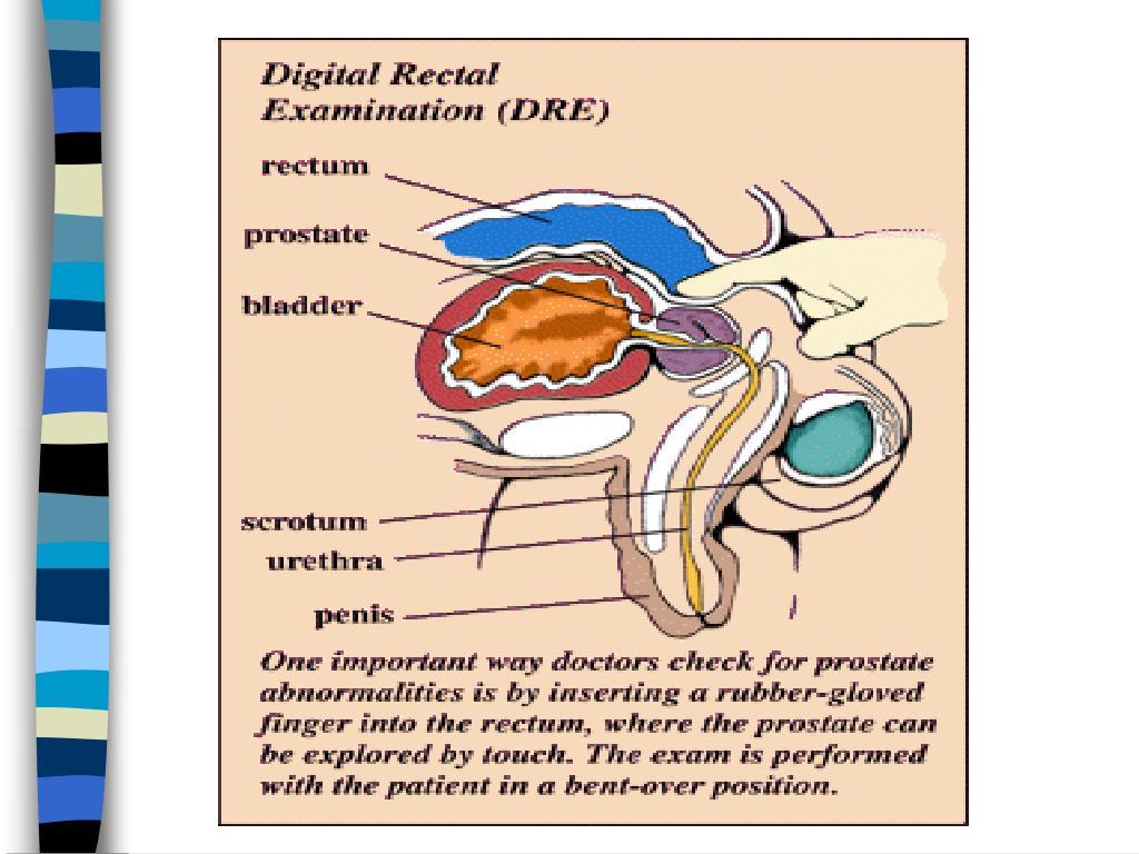 Digital Rectal Exam for Prostate Tumors