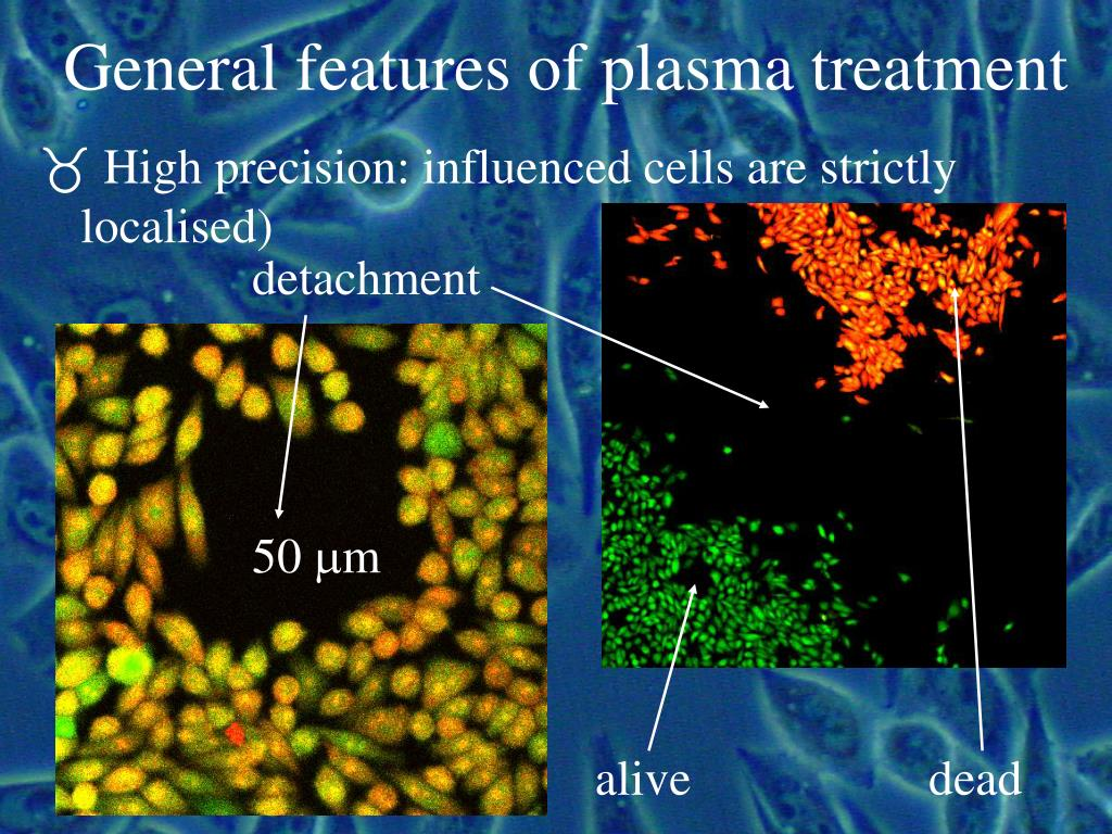 General features of plasma treatment