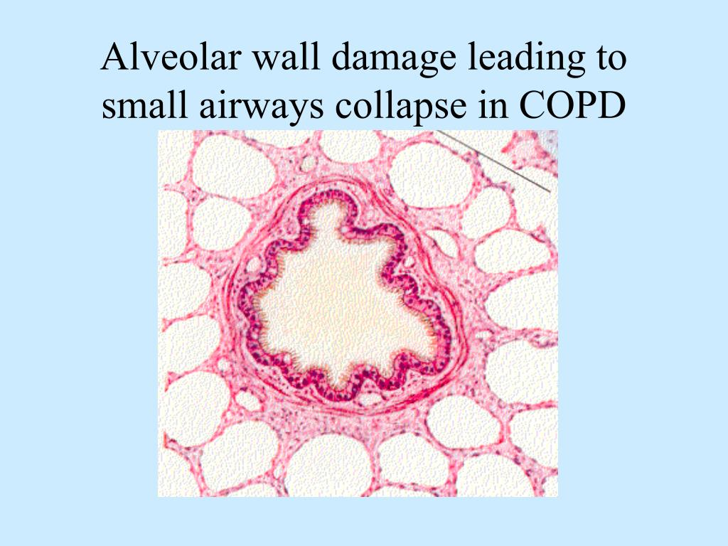 Alveolar wall damage leading to small airways collapse in COPD