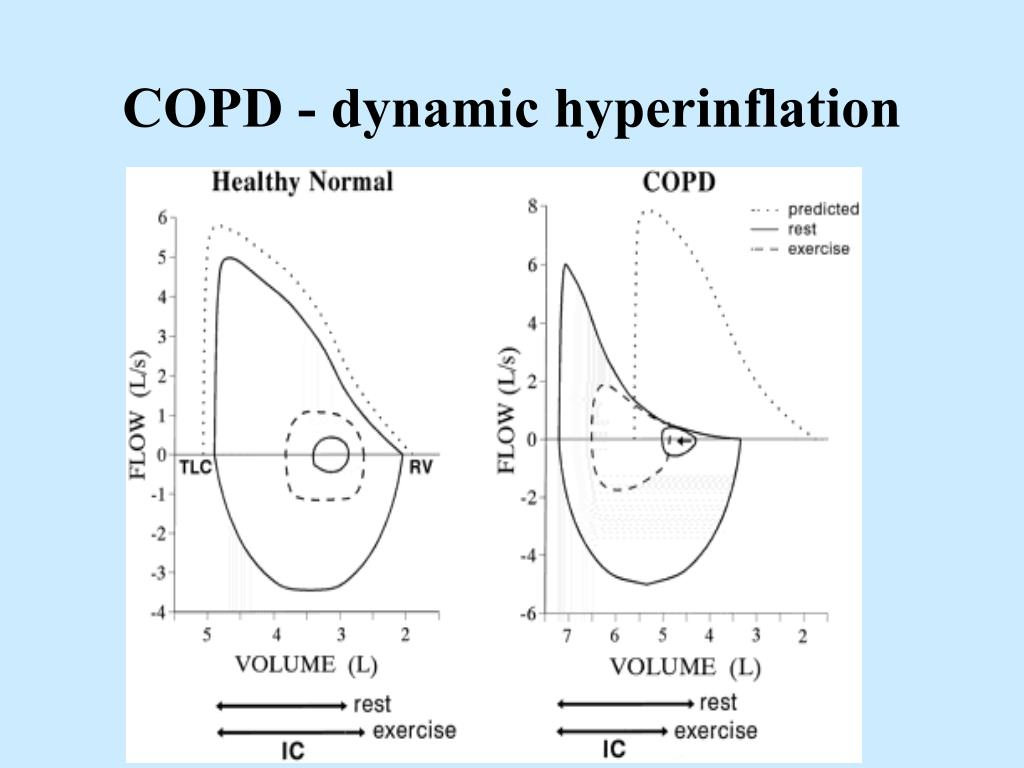 COPD - dynamic hyperinflation